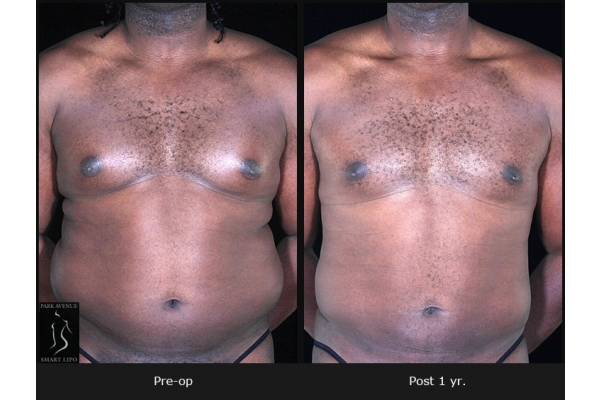 Image Gallery from Park Avenue Smart Lipo
