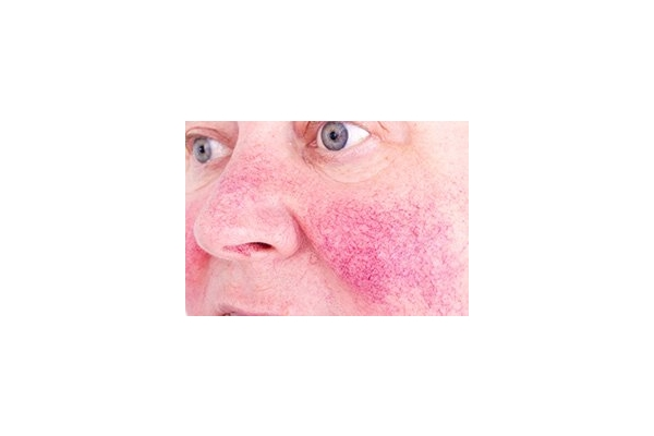 Image Gallery from Best Dermatologist NYC & Cosmetics- Susan Bard, M.D.