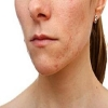 Image Gallery from   Midtown Dermatology