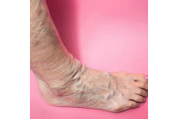 Image Gallery from Vein Doctors of New York