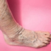 Image Gallery from   Vein specialists- Susan Bard, M.D.