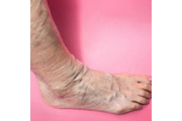 Image Gallery from Varicose Vein Treatments Center